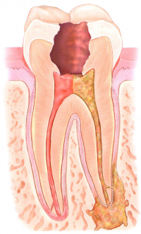 Inflamed and Infected Tooth